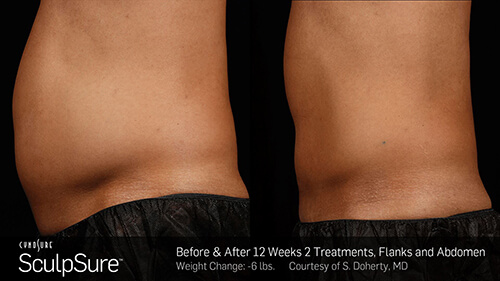 SculpSure Before & After 12 weeks, 2 treatments, Flanks and Abdomen